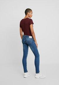 Herrlicher - PITCH SLIM DENIM STRETCH - Slim fit jeans - beamed - 2