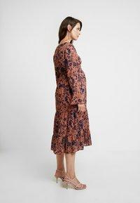 MAMALICIOUS - MLCALM DRESS - Denní šaty - navy blazer with ginger - 3