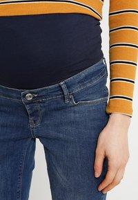 Noppies - TARA - Jeans Skinny Fit - stone wash - 4