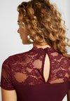 ONLY - ONLMONNA MIX DRESS - Jerseykjole - port royale