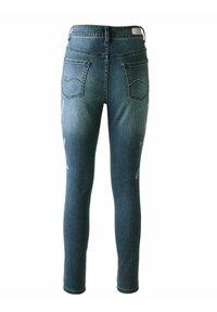 Alba Moda - Slim fit jeans - blau - 5