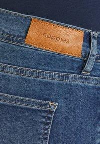 Noppies - DANE EVERYDAY BLUE - Slim fit jeans - everyday blue - 2