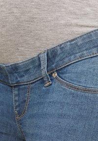 ONLY - OLMIRIS MID - Skinny džíny - light blue denim - 2