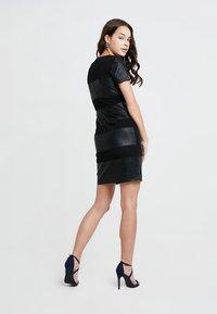 ONLY - ONLNEW MARGOT MIX DRES - Vestido ligero - black - 3