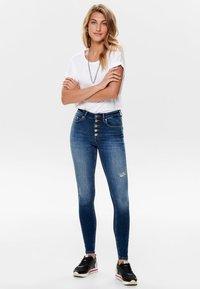 ONLY - ONLBLUSH - Jeans Skinny Fit - dark blue denim - 1