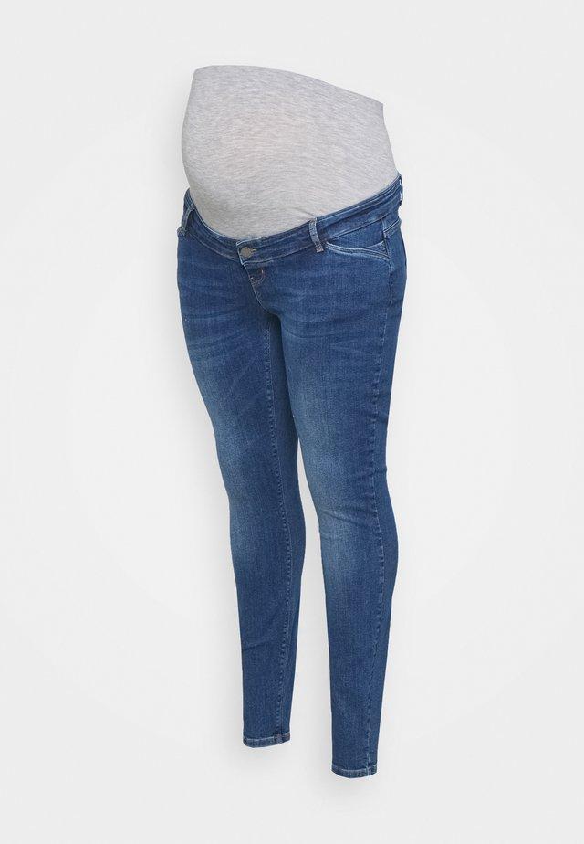 MLSAVANNA - Džíny Slim Fit - medium blue denim