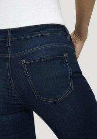 TOM TAILOR - Denim shorts - used mid stone blue denim - 5