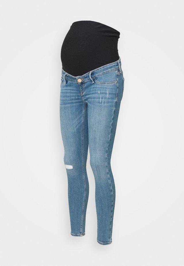 Skinny džíny - buzzy