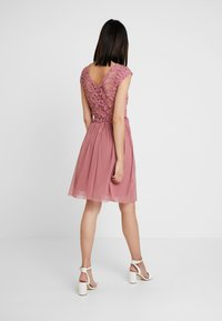 ONLY - ONLCROCHETTA - Day dress - mesa rose - 3