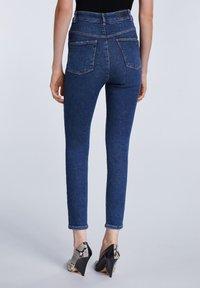 SET - Jeans Skinny Fit - darkblue denim - 2