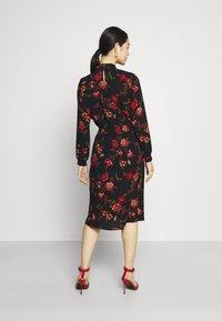 ONLY - ONLNOVA LUX SMOCK DRESS - Sukienka letnia - black - 2