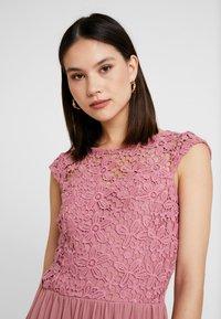 ONLY - ONLCROCHETTA - Day dress - mesa rose - 4